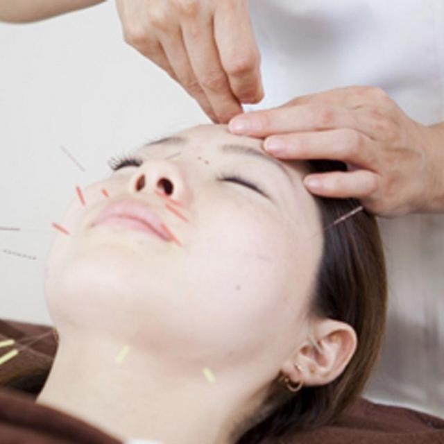 日本医学柔整鍼灸専門学校 中国鍼でリフトアップ!青木式美容鍼灸1