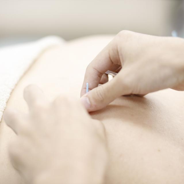 お茶の水はりきゅう専門学校 スポーツ障害 (肩痛)に対する鍼灸治療1