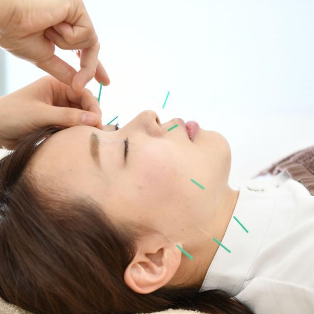 お茶の水はりきゅう専門学校 【美容鍼灸体験フェア開催!】美容鍼灸で効果を体験しよう!1