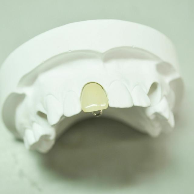 愛知学院大学歯科技工専門学校 前装冠の製作「自分の歯の色を再現しよう!」2