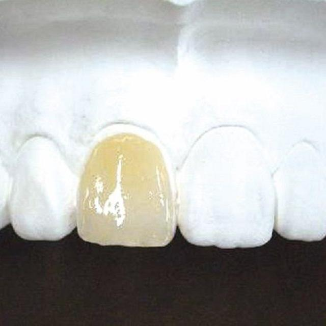 新東京歯科技工士学校 総合歯科技工コース  白い歯作り1