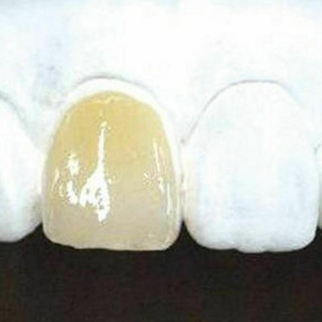 新東京歯科技工士学校 【人数限定】歯科技工士の仕事がわかる!白い歯作り体験1